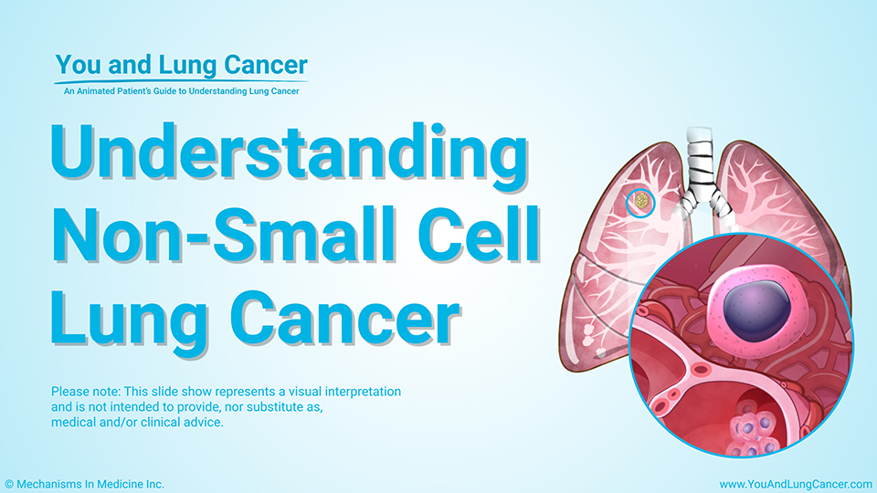 Module: Understanding Non-Small Cell Lung Cancer