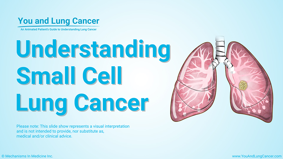 Module: Understanding Small Cell Lung Cancer
