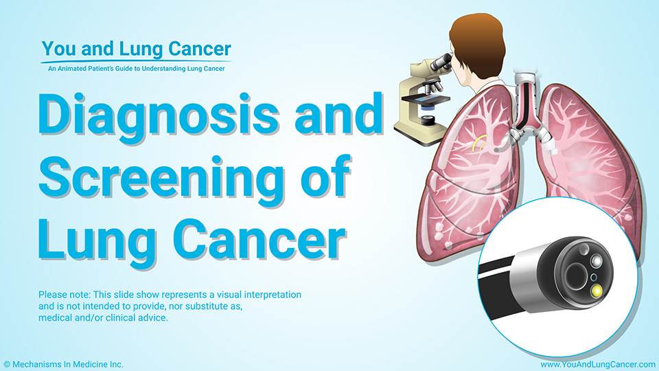 Slide Show - Diagnosis and Screening of Lung Cancer