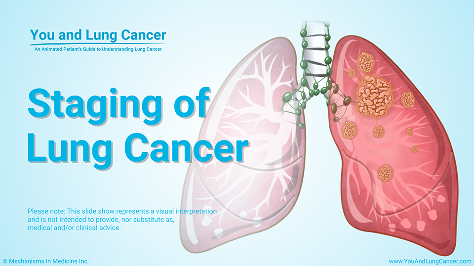 Slide Show - Staging of Lung Cancer
