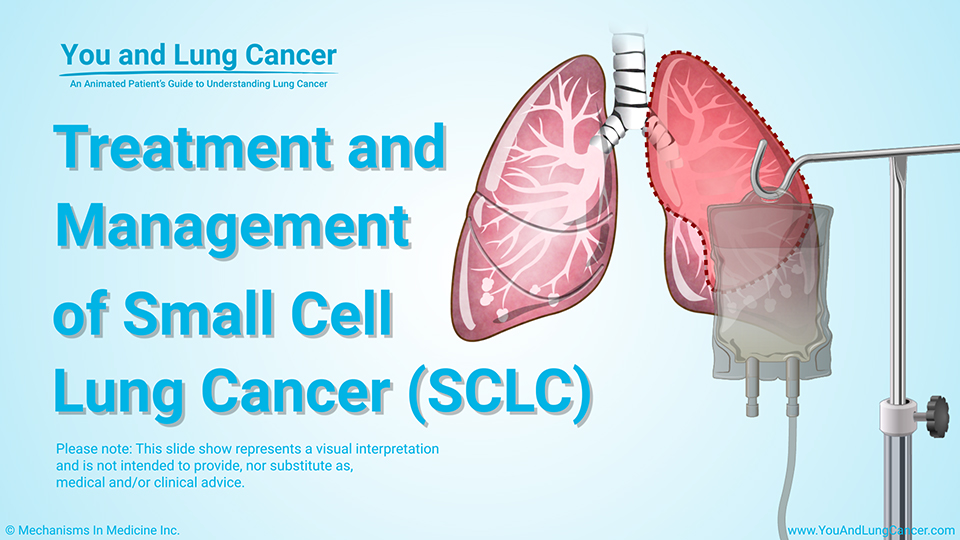 Slide Show - Treatment and Management of SCLC